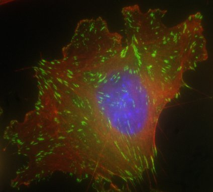A cell with focal adhesions (green) and actin filaments (red). These work together to pull the cell along a surface.
